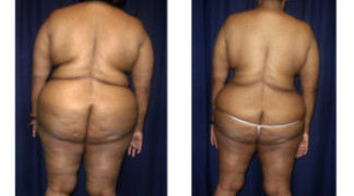 Lipo-Abdominoplasty (Staged) 2 - Back View - Before and After Surgery Two