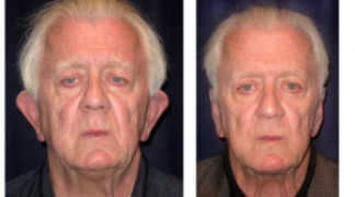 Before and After - Otoplasty 2 - Front View