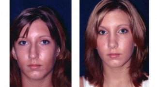 Before and After - Rhinoplasty 1 - Front View