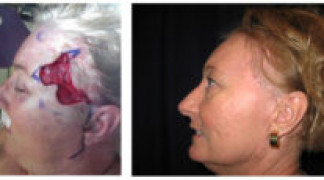 Before and After - Skin Cancer Patient 16 - Side View