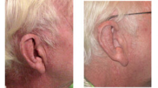 Before and After - Skin Cancer Patient 13 - Profile