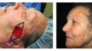 Before and After - Skin Cancer Patient 20 - Side View
