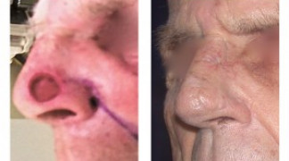 Before and After - Skin Cancer Patient 3 - Front View