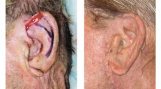 Before and After - Skin Cancer Patient 6 - Side View