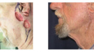 Before and After - Skin Cancer Patient 8 - Side View