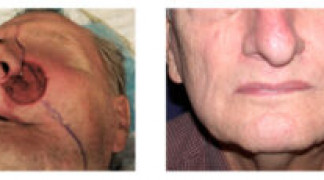 Before and After - Skin Cancer Patient 9 - Front View