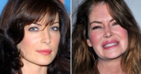 Bad celebrity plastic surgery: Not common and completely avoidable